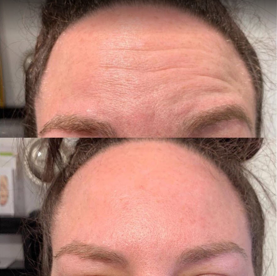 Calgary botox for forehead lines.jpg